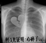 经X光证明:心碎了